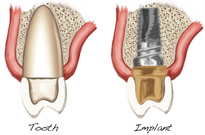 Dental Implants example image