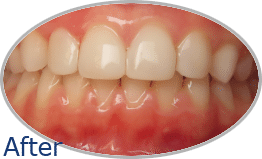 Teeth Bonding Before and After Gallery