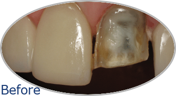 Dental Crowns Before and After