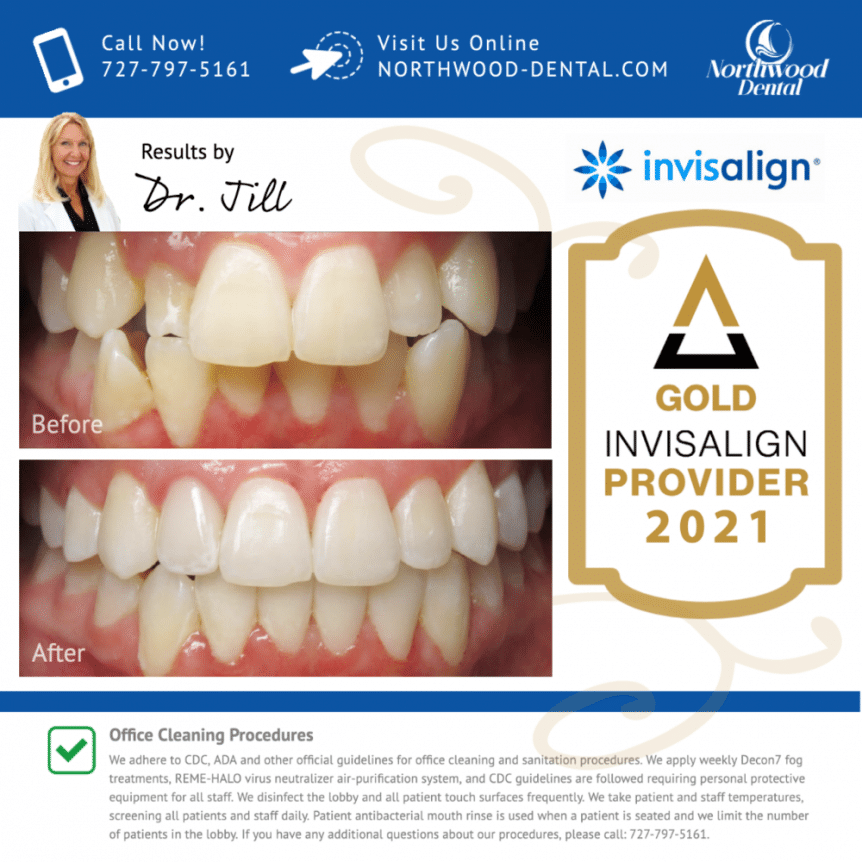 large-Invisalign Results by Dr Jill - 1