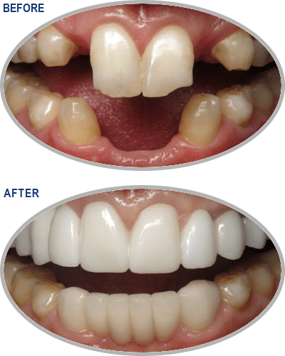 large-Smile-Gallery_Implants-Gallery_Implants-0-Before-After_FINAL_Edited_Text
